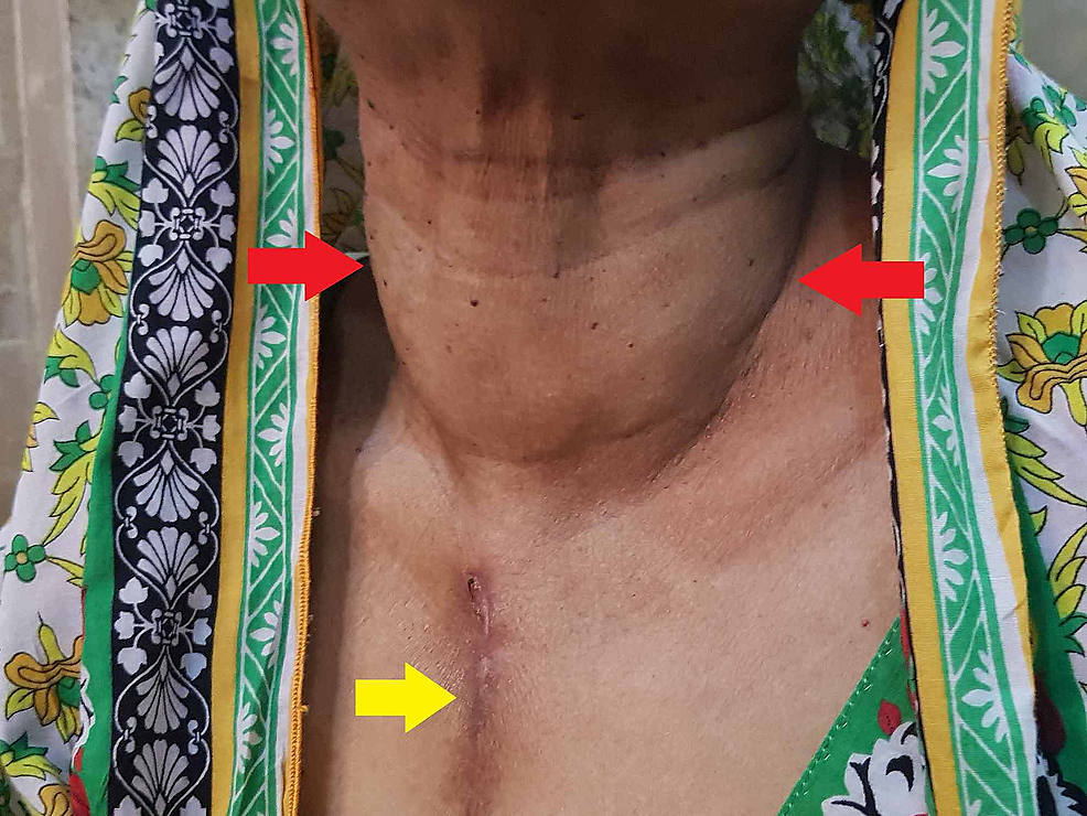 Visible-goiter-(red-arrows)-along-with-a-clear-previous-median-sternotomy-incision-scar-(yellow-arrow)
