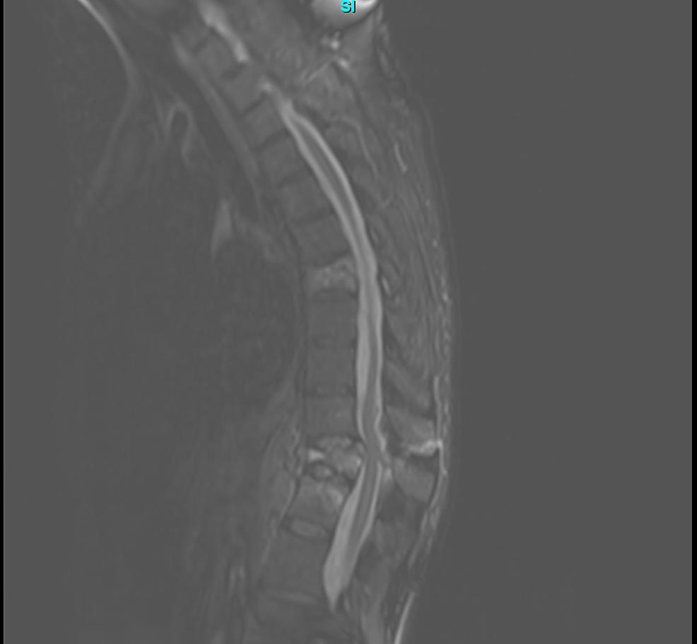 Pre-operative-thoracic-magnetic-resonance-imaging-(MRI)-demonstrating-T11-burst-fracture