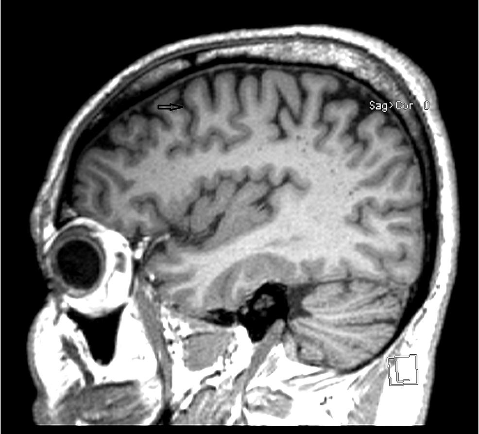 MRI-of-the-brain.