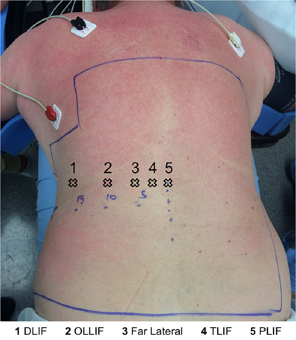 Trajectory-points-for-different-procedures:-MIS-DLIF-is-the-furthest-on-the-left.-Trajectory-is-usually-perpendicular-to-the-skin.-Incision-corresponds-to-above-as-well.-Except-for-TLIF,-both-medial-and-paralateral-(4-and-5)-can,-and-has-been,-utilized.