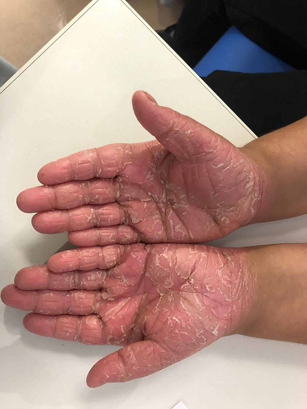 Erythematous-hyperkeratotic-skin-plaques-and-papules-with-scales-over-thepalmar-aspect-of-both-hands.