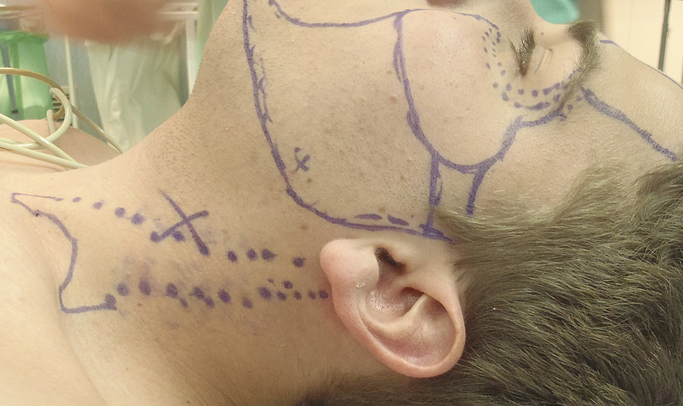 Topographic-landmarks-of-SCM-before-surgical-treatment