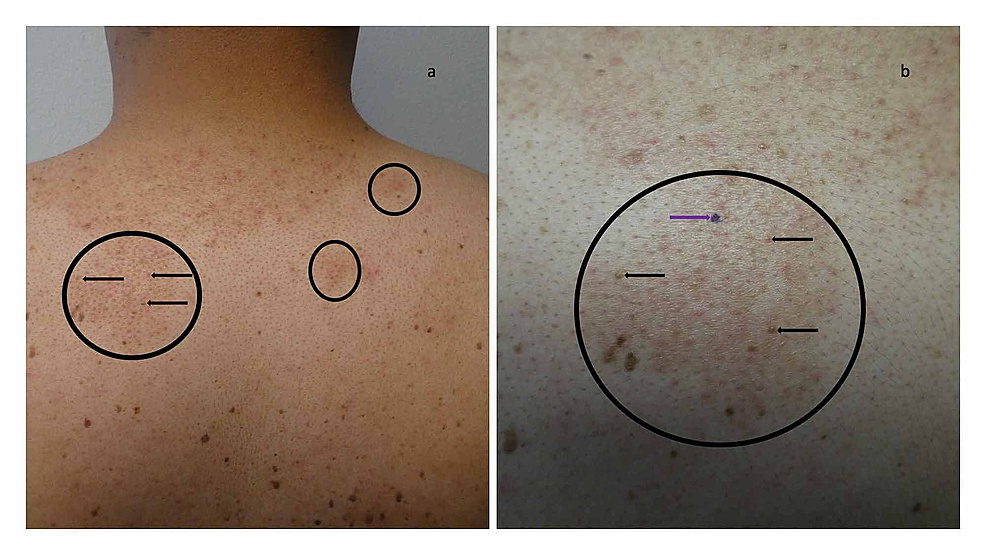 Malassezia-(Pityrosporum)-folliculitis-incognito-on-the-posterior-neck-and-upper-back-of-a-44-year-old-man-mimicking-treated-follicular-eczema