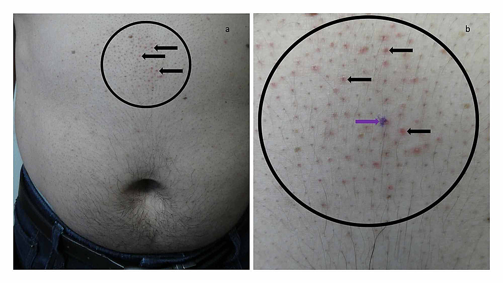 Malassezia-folliculitis-incognito-on-the-abdomen-of-a-44-year-old-man-mimicking-treated-follicular-contact-dermatitis