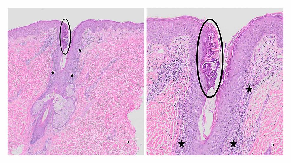 Pathologic-changes-of-Malassezia-folliculitis—hematoxylin-and-eosin-stained-sections
