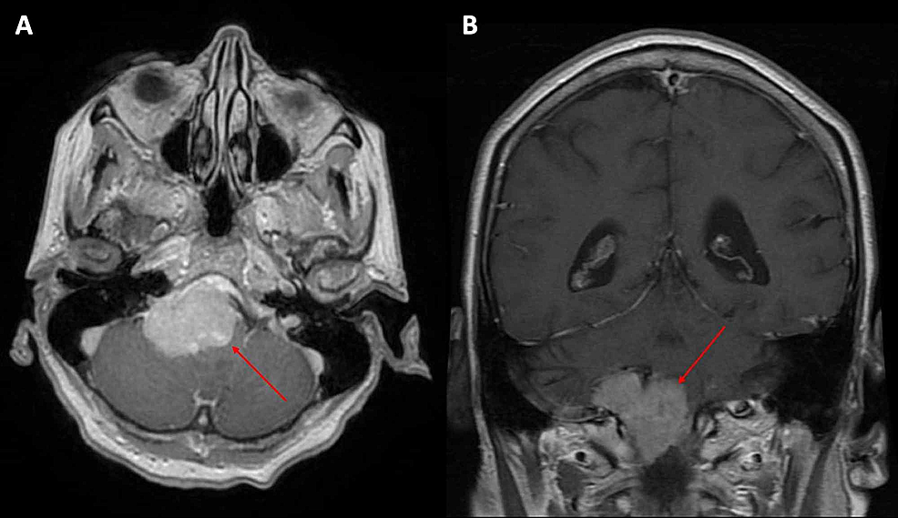 (A)-Axial-and-(B)-coronal-views-of-magnetic-resonance-imaging-of-the-brain-at-the-time-of-treatment-planning-revealing-right-inferior-clival-meningioma.-