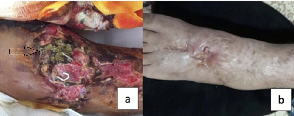(a)-Dorsum-of-the-patient's-foot-before-treatment-when-the-patient-was-diagnosed-with-aspergillosis.-(b)-Dorsum-of-the-patient's-foot-about-one-year-after-treatment,-the-patient-has-mild-weakness-of-dorsiflexion-of-his-ankle-due-to-his-extensor-tendon-repair.