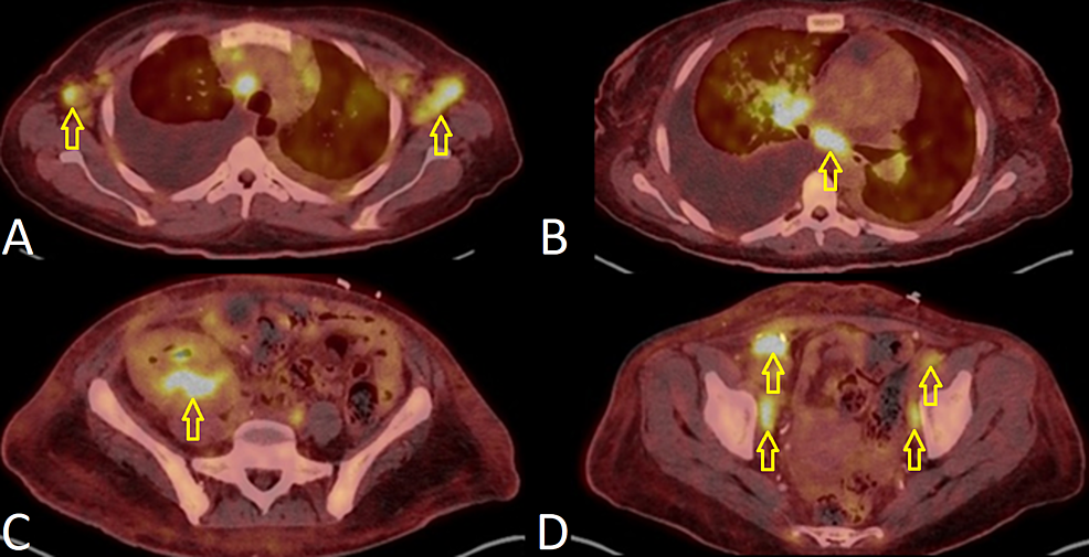 Positron-emission-tomography-(PET)-scan-for-staging-of-Kaposi-sarcoma.
