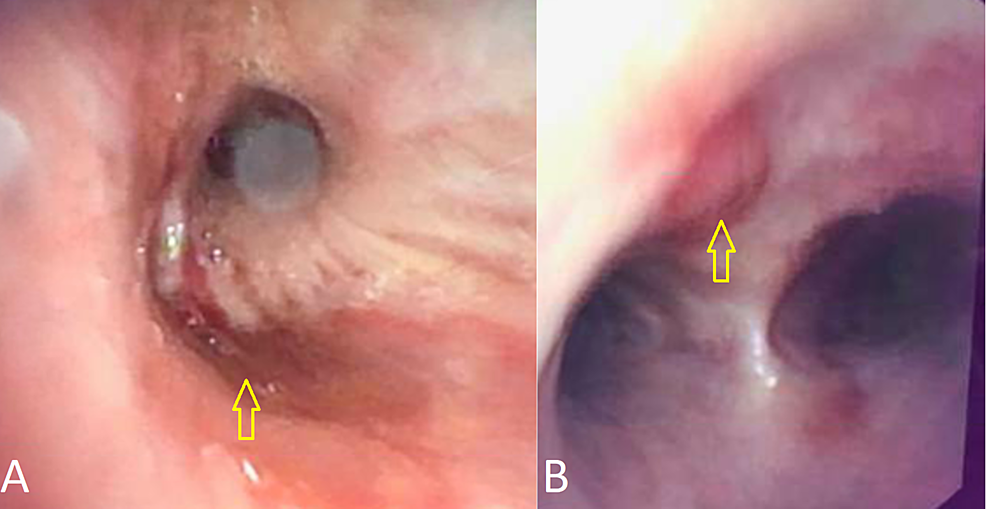 Bronchoscopy-showing-erythematous-patches-(A)-and-purpuric-lesions-(B)-in-the-airways-consistent-with-Kaposi-sarcoma.