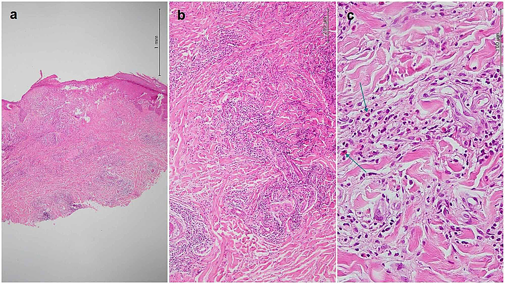 Histopathological-features.-(a)-Hyperkeratosis,-crust-formation,-mild-acanthosis,-focal-spongiosis,-and-exocytosis-of-lymphocytes.-Dense-perivascular-inflammatory-infiltration-of-superficial-and-deep-(hematoxylin-and-eosin,-40×).-(b)-Superficial-and-deep-dermal-dense-perivascular-infiltration-of-mixed-populations-of-lymphocytes,-histiocytes,-and-eosinophils-(hematoxylin-and-eosin,-100×).-(c)-Dense-perivascular-infiltration-of-mixed-populations-of-lymphocytes,-histiocytes,-and-eosinophils-(arrows)-around-the-vessels-(hematoxylin-and-eosin,-400×)