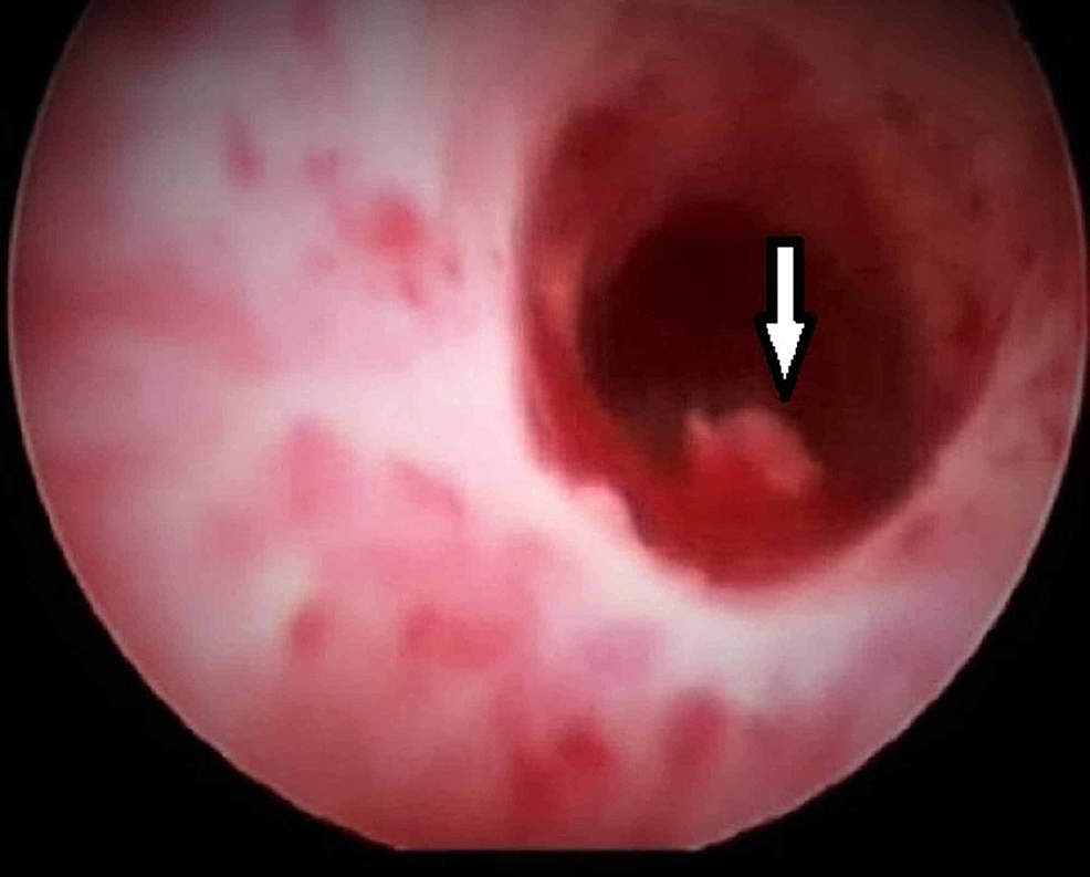 A-small-blood-clot-seen-in-the-urinary-bladder-during-cystoscopy