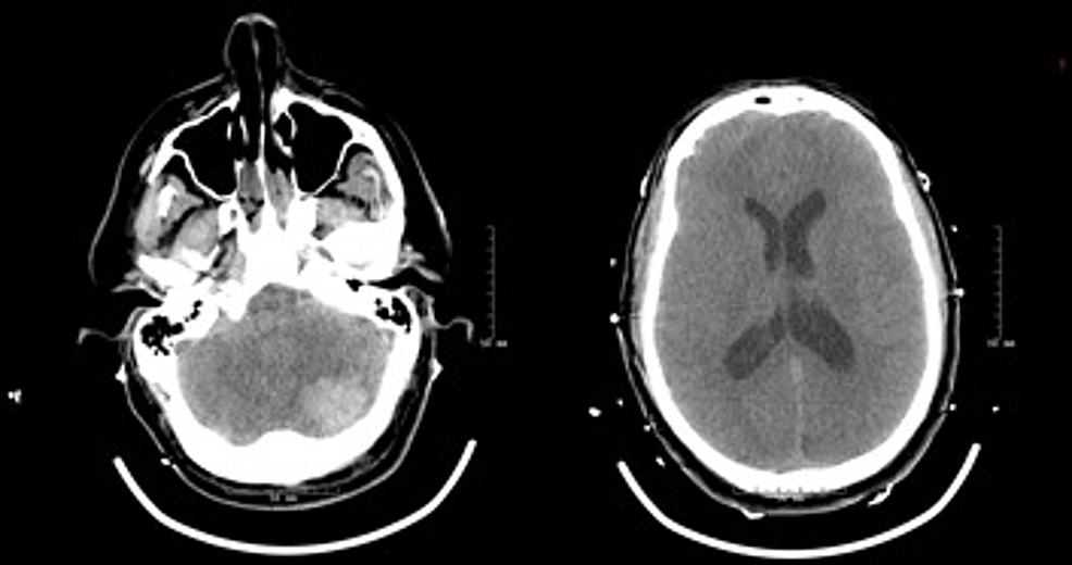 Interval-computed-tomography-(CT)-demonstrating-enlarging-cerebellar-hemorrhage-and-dilated-lateral-ventricles