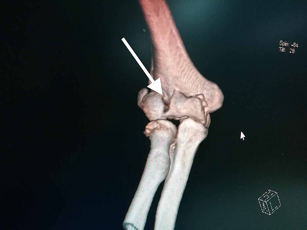 Computed-tomography-(CT)-scans-with-a-3D-reconstruction-helps-in-the-better-assessment-of-the-fracture-profile