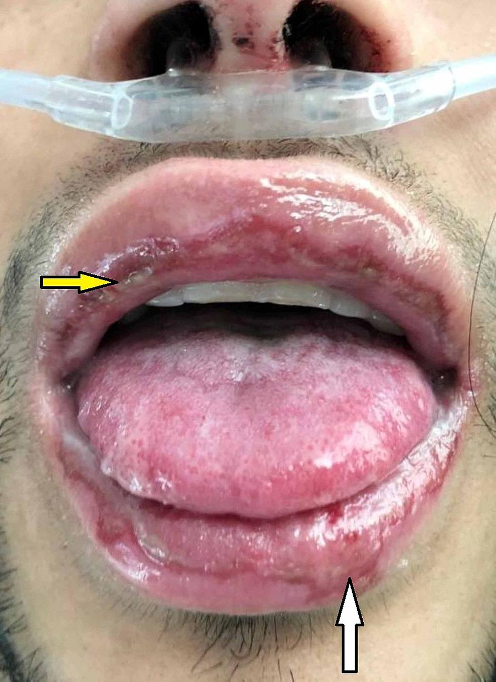 Initial-facial-examination