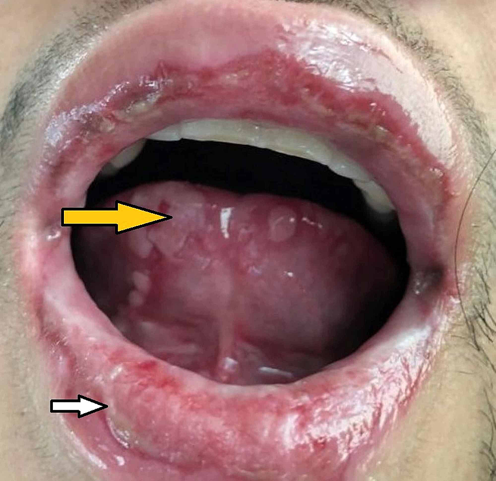 Buccal-mucosa-and-anterior-tongue