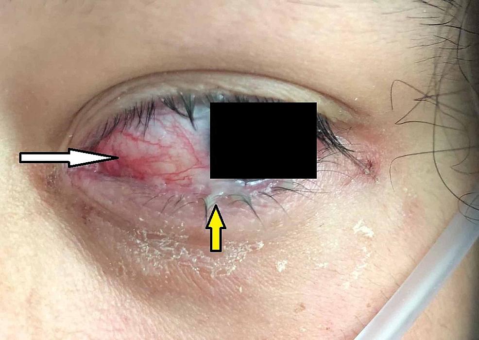 Ocular-examination