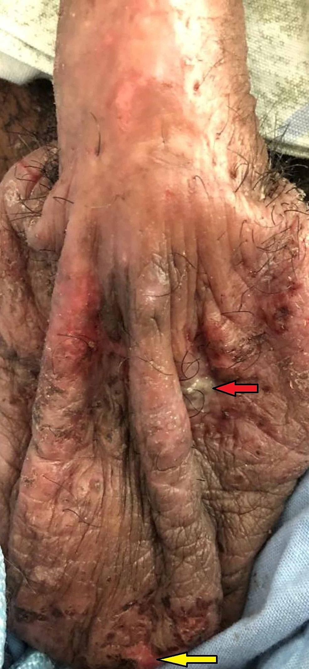 Genital-lesions