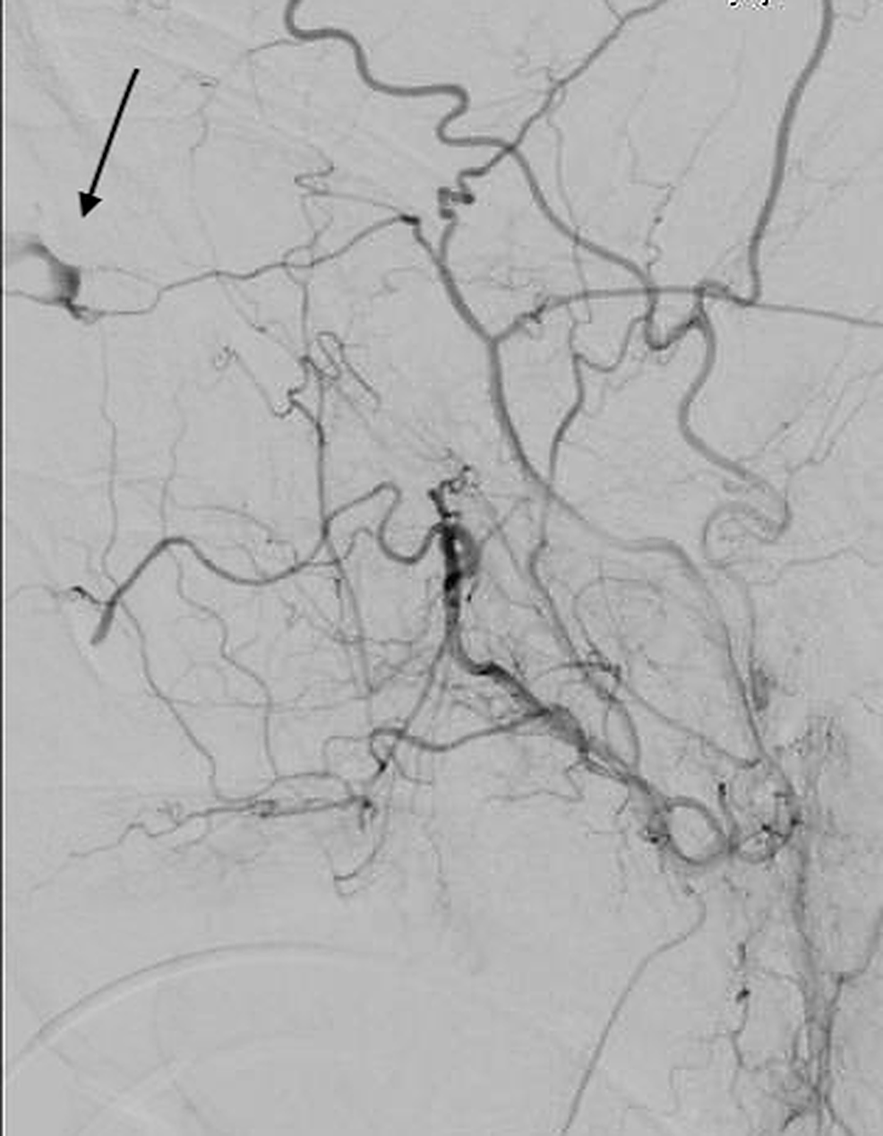 Lateral-external-carotid-angiogram-demonstrating-active-extravasation-from-the-right-meningo-ophthalmic-artery.-