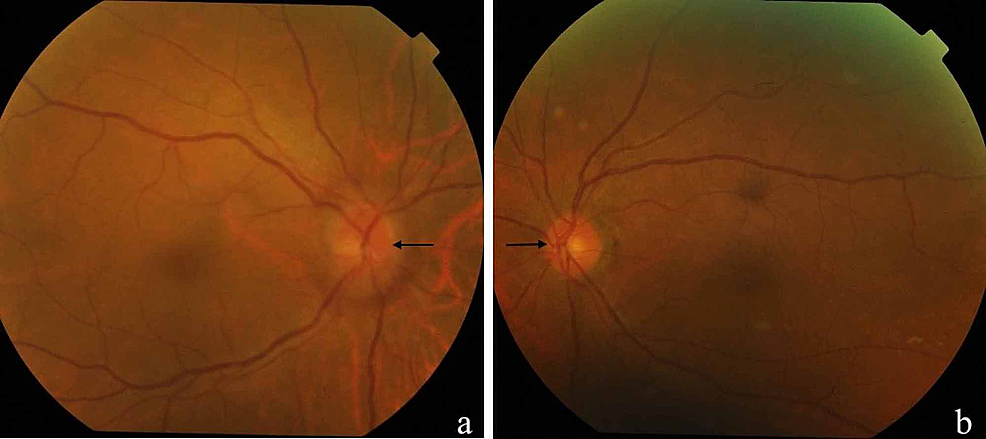 Fundus-photo-of-the-right-eye-showing-hyperaemic-optic-disc-with-blurred-margins-(a).-The-optic-disc-was-normal-in-the-left-eye-(b).