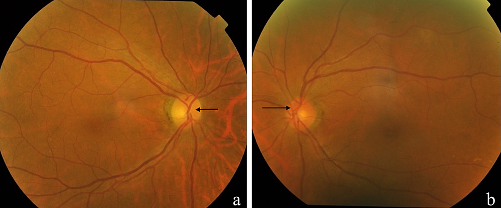 The-right-optic-disc-was-pale-(a)-one-month-after-presentation-compared-to-left-optic-disc-(b).