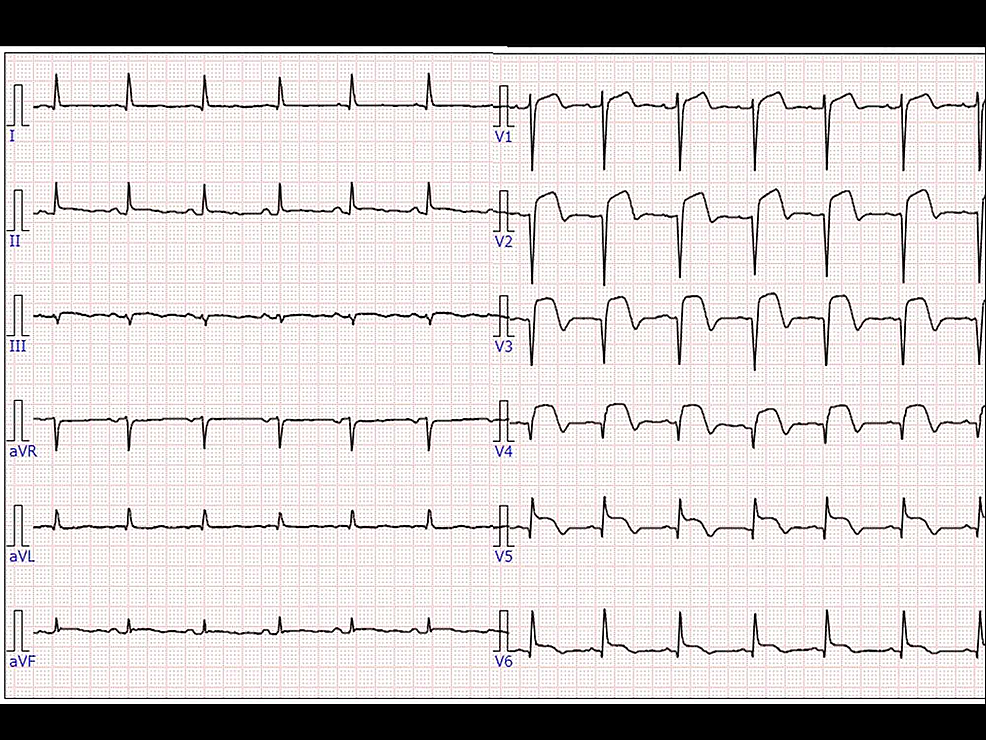 Electrocardiogram-(ECG)-after-closing-thoracotomy