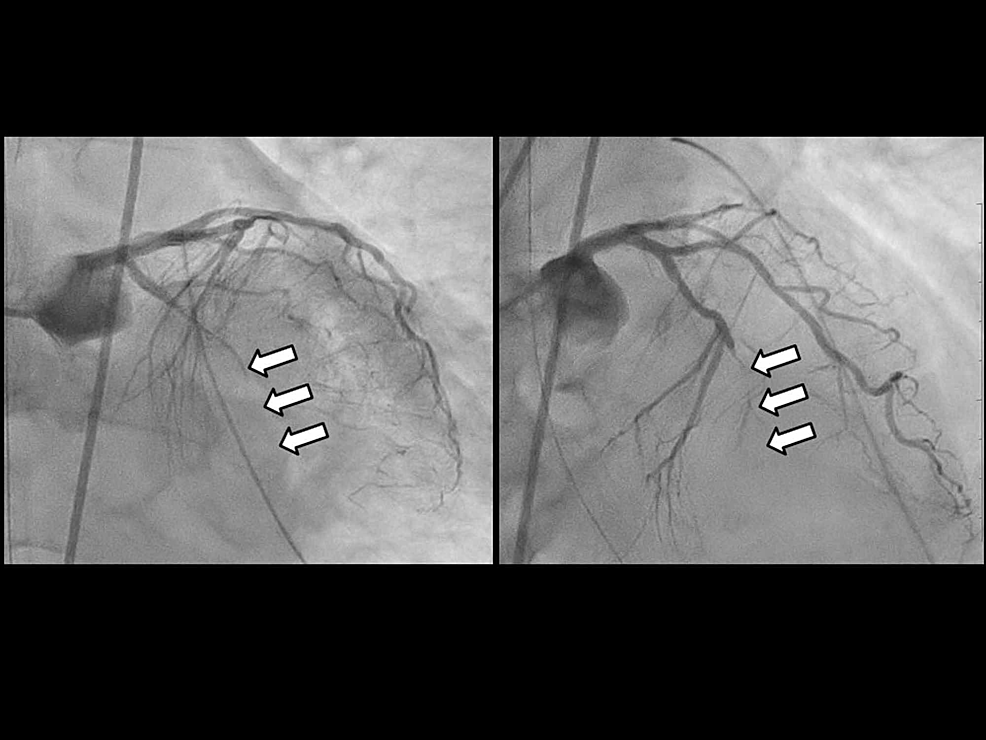 Coronary-angiography-(CAG)-on-arrival