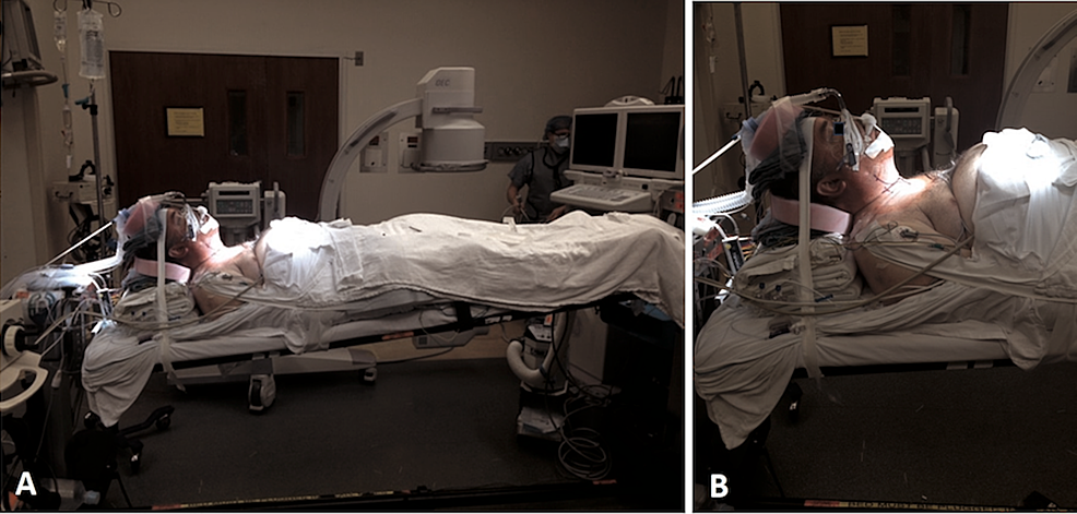 Supine-positioning-during-anterior-cervical-approach