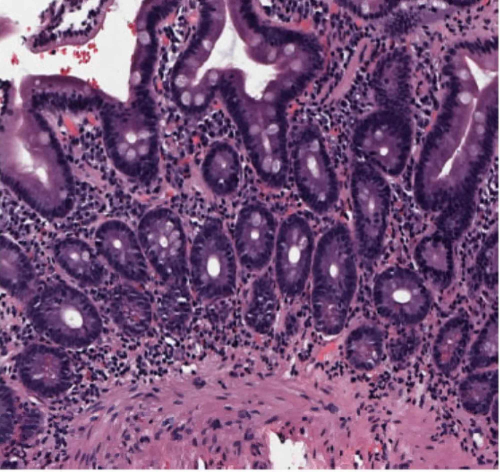 Hematoxylin-and-eosin-stain-of-duodenal-biopsy-showing-plasma-cells