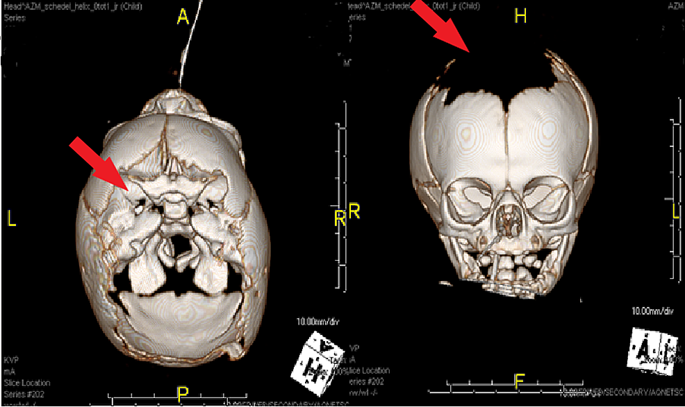 3D-representation-of-postnatal-computed-tomography-scan-which-verified-the-extensive-defect-of-the-scalp-and-skull