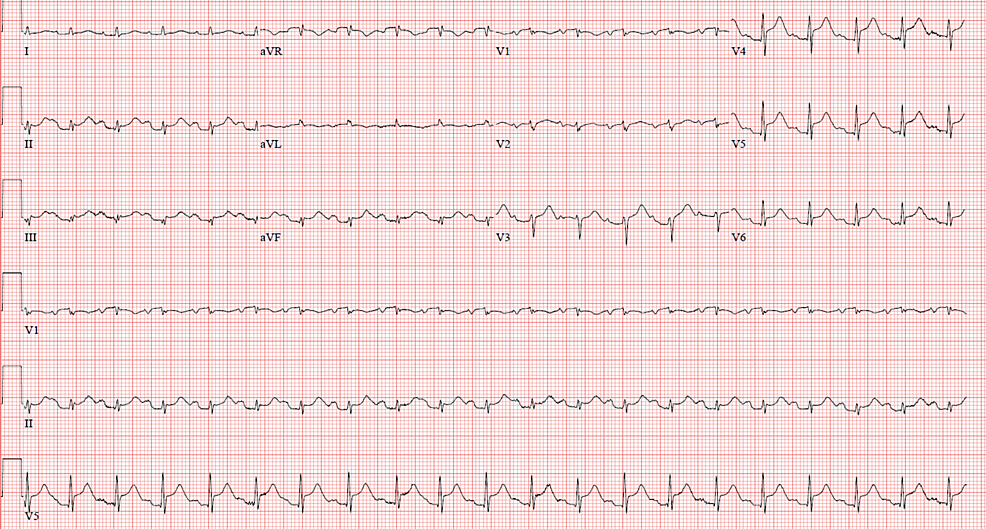 Electrocardiogram-on-presentation-showing-diffuse-ST-elevation.