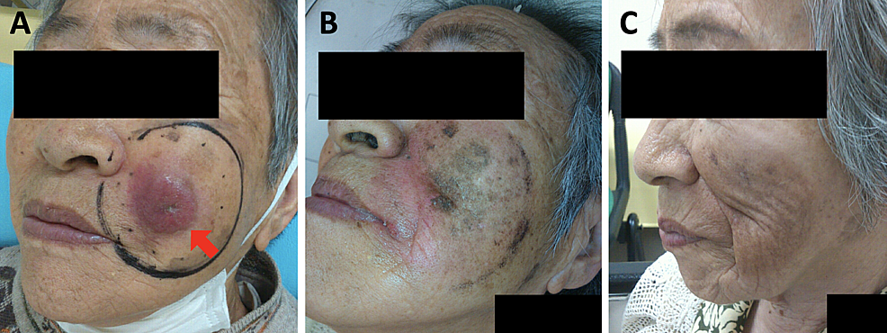Appearance-of-the-Merkel-cell-carcinoma.-(A)-Before-initiation-of-radiation-therapy.-An-arrow-shows-the-tumor-and-a-black-circle-shows-the-irradiation-field-targeting-the-gross-tumor-with-a-margin-of-2–3-cm.-(B)-On-the-day-of-completion-of-radiation-therapy.-(C)-Three-months-after-initiation-of-radiation-therapy.