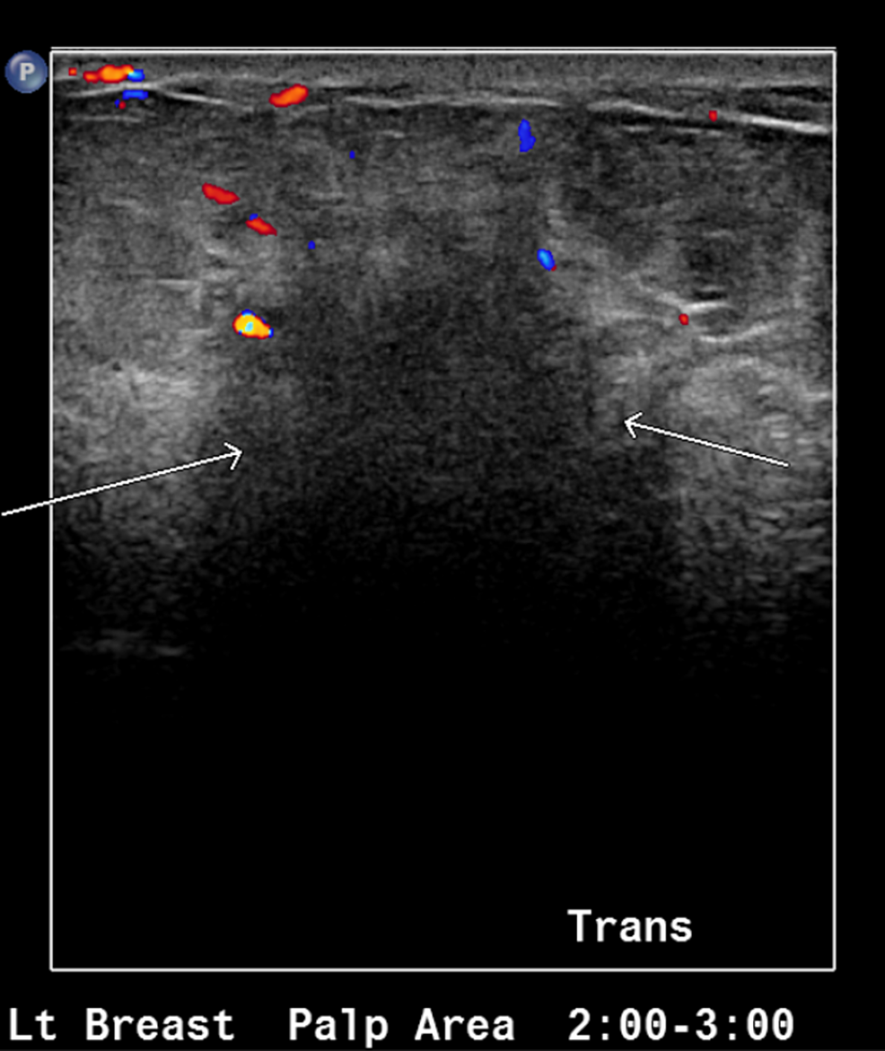 Ultrasound-of-the-left-breast-showing-area-of-abnormal-echogenicity