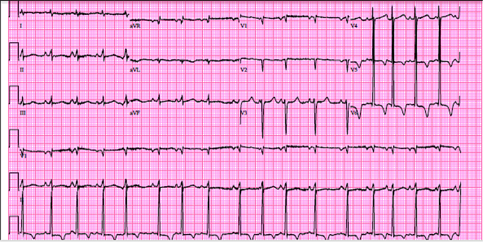 Electrocardiogram-on-admission.