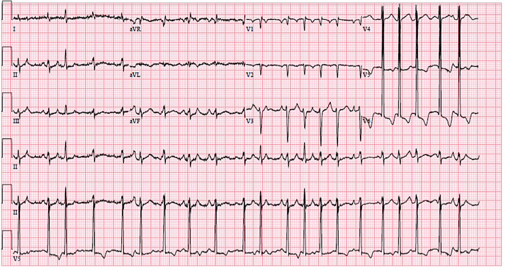 Electrocardiogram-on-worsening-of-respiratory-status-showing-atrial-fibrillation-with-rapid-ventricular-response-in-addition-to-a-prolonged-QTc.