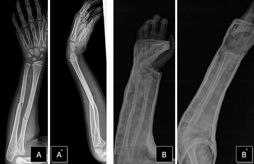 Imaging-results-of-the-patient's-right-forearm-fracture-at-initial-visit-to-the-clinic