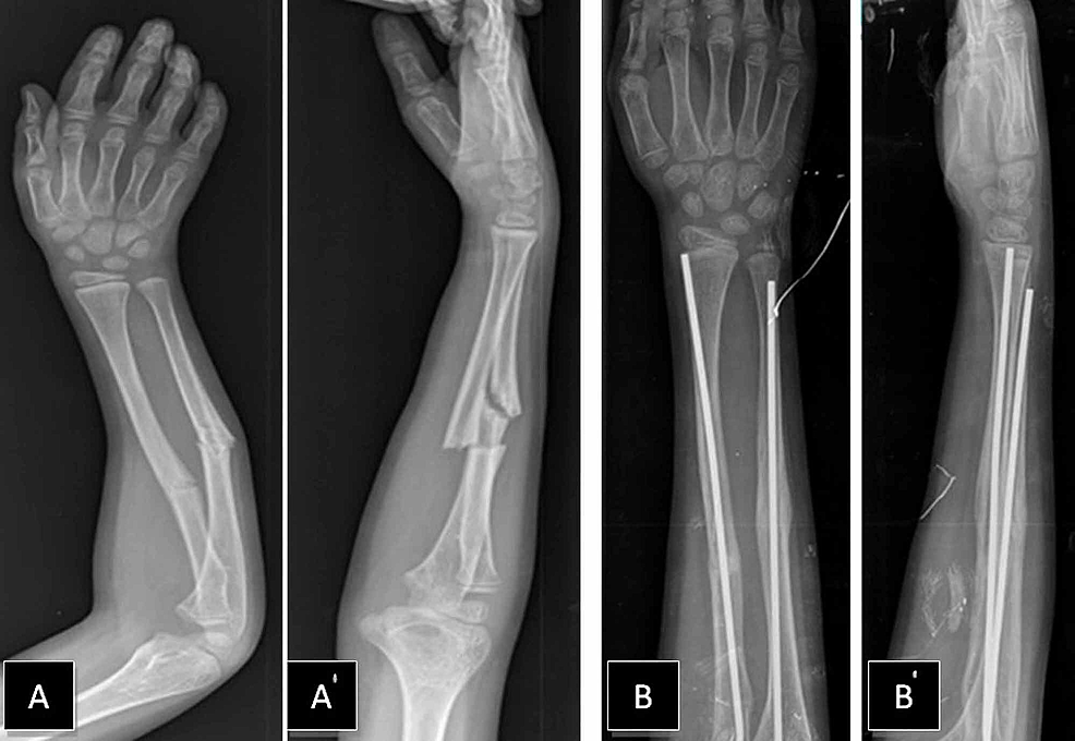 First-refracture-and-postoperative-views-after-open-reduction-and-intramedullary-nail-fixation