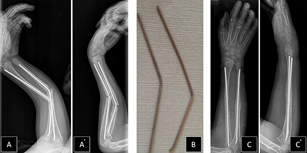 Forearm-refracture-with-nails-in-situ-and-postoperative-views