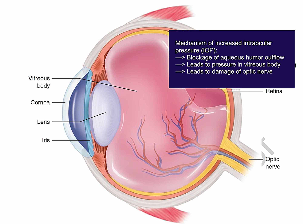 Eye-schematic-depicting-the-mechanism-for-the-elevation-of-intraocular-pressure