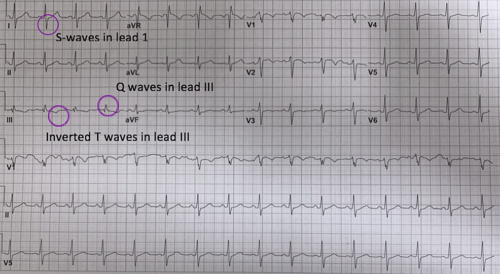 Electrocardiogram-showed-an-S1Q3T3-pattern-which-includes-S-wave-in-lead-I,-Q-wave-in-lead-III-with-T-wave-inversion