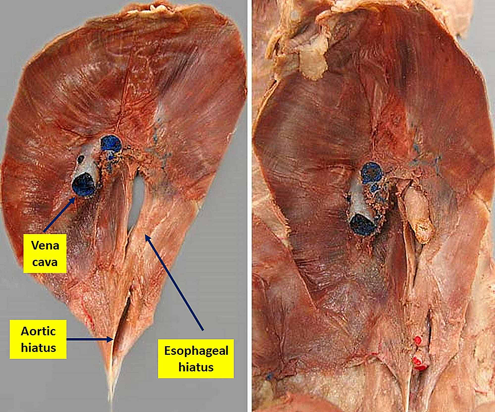 An-anatomical-dissection-diaphragm-from-its-abdominal-position.-On-the-left,-the-aorta-and-esophagus-have-been-removed,-while-on-the-right-it-is-possible-to-observe-the-esophagus