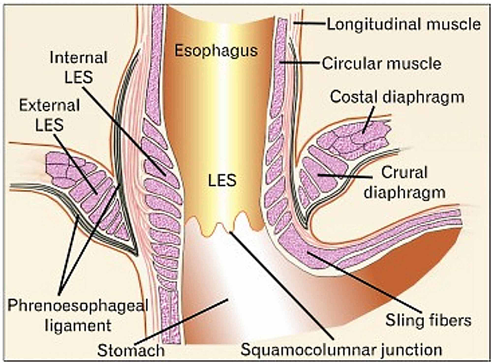 The-area-of-passage-of-the-esophagus-inside-the-diaphragm-and-the-phrenoesophageal-ligaments