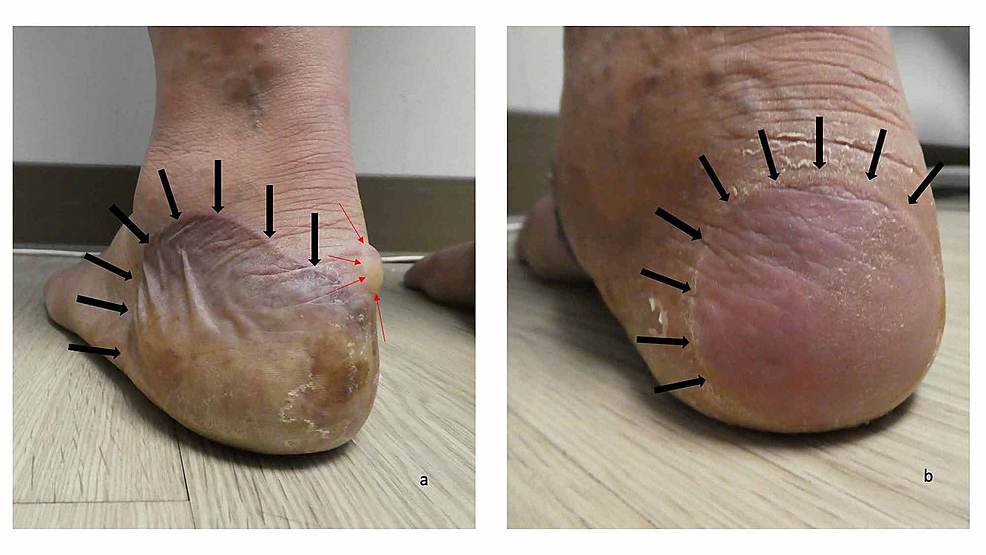 Dyshidrosiform-bullous-pemphigoid-presenting-as-plantar-blisters-in-a-61-year-old-man