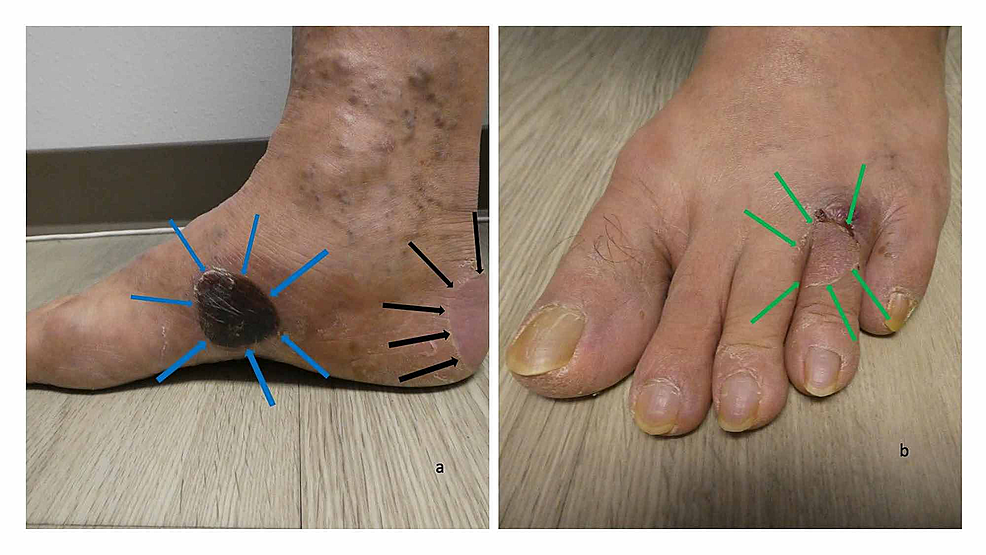 Blisters-from-dyshidrosiform-bullous-pemphigoid-on-the-feet-of-a-61-year-old-man