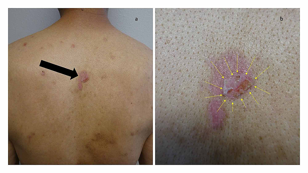 Erythematous-urticarial-dermal-plaques-and-blisters-on-the-back-of-a-man-with-dyshidrosiform-bullous-pemphigoid