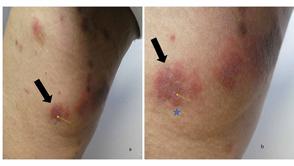 Erythematous-urticarial-dermal-plaques-with-small-papules-on-the-right-thigh-of-a-man-with-dyshidrosiform-bullous-pemphigoid