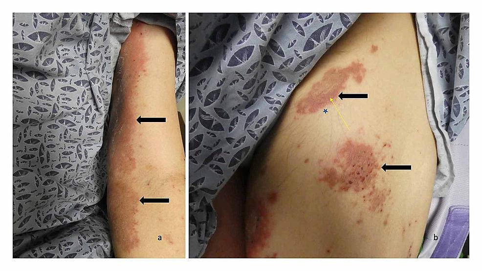 Erythematous-urticarial-dermal-plaques-on-the-left-arm-and-left-leg-of-a-man-with-dyshidrosiform-bullous-pemphigoid