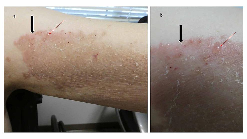 Erythematous-plaque-with-vesicles-on-the-left-arm-of-a-man-with-dyshidrosiform-bullous-pemphigoid