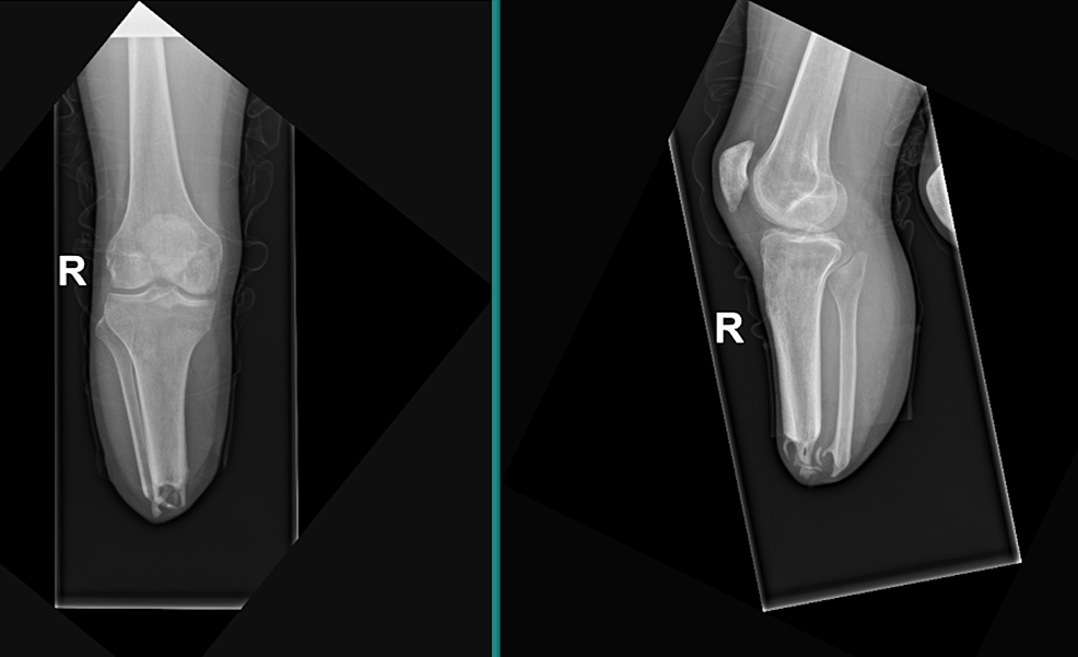 Right-lower-extremity-anteroposterior-(left)-and-lateral-(right)-plain-radiograph-of-transtibial-amputation-with-distal-heterotopic-ossification-of-the-tibia-and-fibula-stumps.
