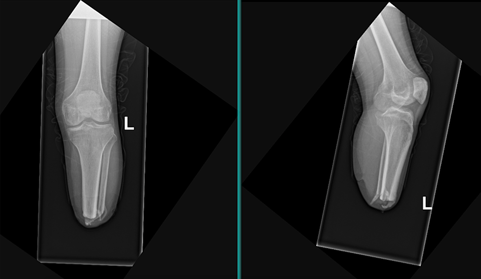 Left-lower-extremity-anteroposterior-(left)-and-lateral-(right)-plain-radiograph-of-transtibial-amputation-with-distal-heterotopic-ossification-of-the-tibia-and-fibula-stumps.