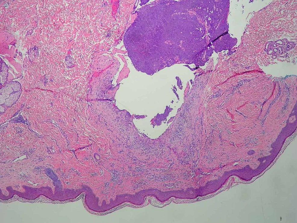 Histopathology-of-Tumor-Specimen-Mag.-4x